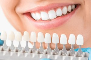 list of dental procedures and prices